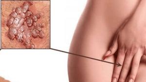 венерические болезни у женщин