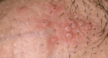 Герпес (простуда) на половых губах: фото, лечение, как выглядит
