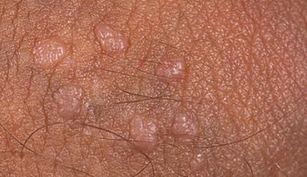 Кондиломы на половых губах: фото, причины, лечение | Венерические ...