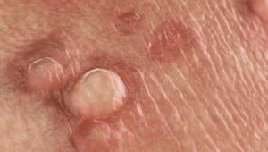 Кондиломы на половых губах: фото, причины, лечение