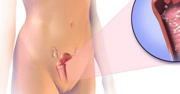 трещинки на половых губах у женщин