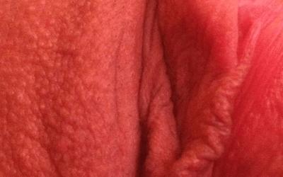 Сыпь на половых губах — что это означает? | Венерические ...