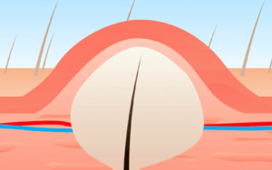 Что делать, если появился прыщик на лобке?