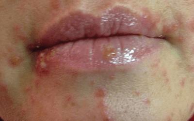 Вагинальный сифилис