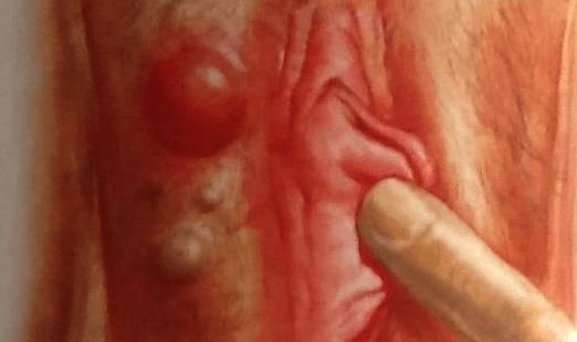 чешется влагалище и половые губы