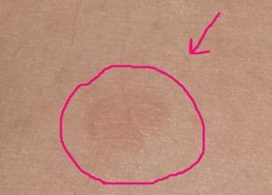 Пятна на внутренней стороне бедра у женщин: фото, причины, лечение