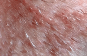 Шелушение на лобке у женщин: фото, причины, лечение