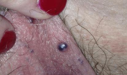 варикоз половых губ симптомы