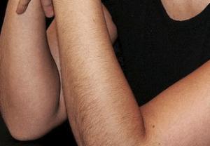 длинные волосы на руках у женщин