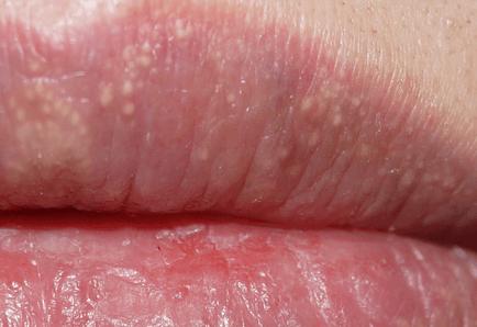 гранулы фордайса на губах у женщин