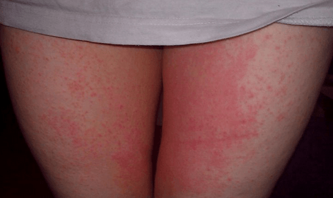 Опрелости в паху у женщин: фото, причины, лечение   Венерические ...