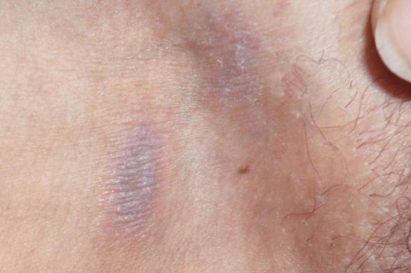 опрелости в паху у женщин симптомы лечение