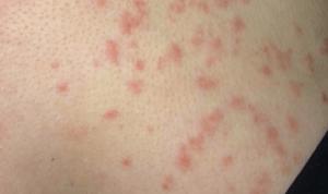 Сыпь на груди у женщин: фото, причины, лечение