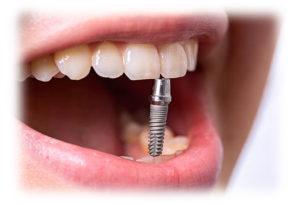 Всё о качественной имплантации зубов