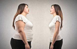 Что нужно знать о хирургическом лечении ожирения?