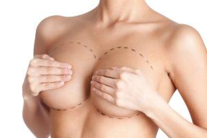 Маммопластика: увеличение груди