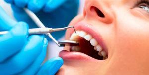 Использование зубных штифтов