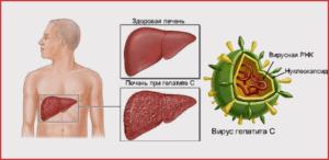 Как передается гепатит С, и можно ли с ним работать