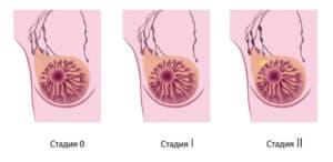 Лечение рака молочных желез в клиниках Израиля